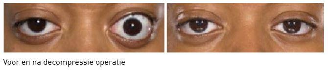 ogen voor en na decompressieoperatie