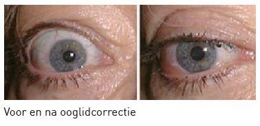 Ooglidcorrectie voor en na operatie